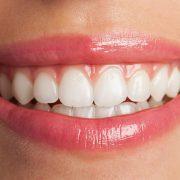 Skaling i piaskowanie zębów - jak często je wykonywać?